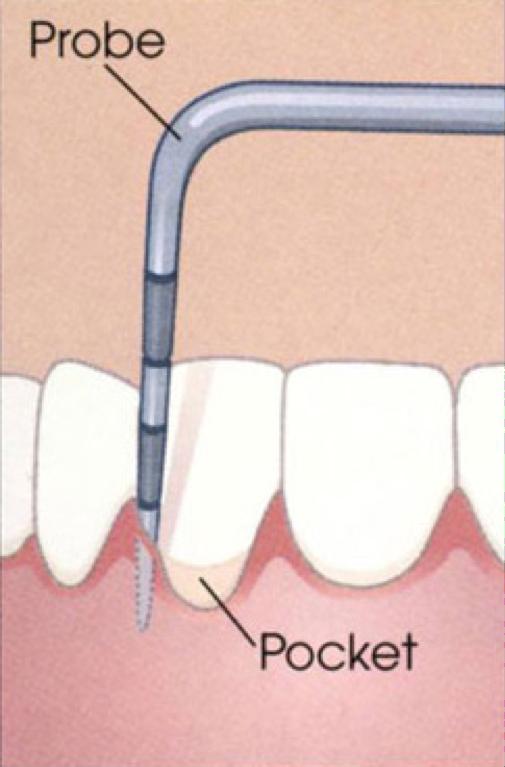 periodontal probe graphic